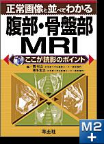 正常画像と並べてわかる腹部・骨盤部MRI
