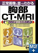 正常画像と並べてわかる胸部CT・MRI