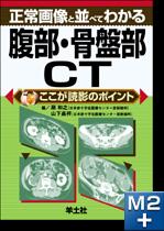 正常画像と並べてわかる腹部・骨盤部CT